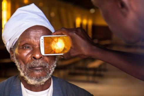 Peek Vision smartphone eye examination